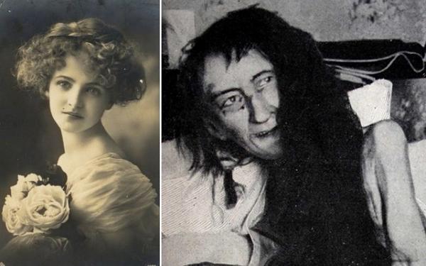 داستان بلانش مونیه؛ دختر فرانسوی که 25 سال به خاطر عشق در خانه محبوس شد (